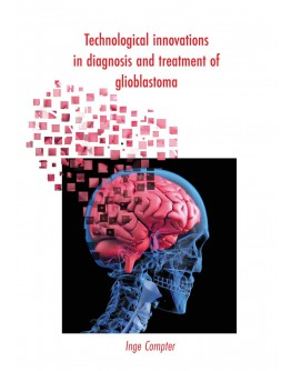 Technological innovations in diagnosis and treatment of glioblastoma