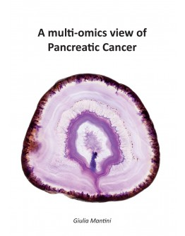 A multi-omics view of Pancreatic Cancer