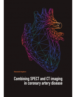 Combining SPECT and CT imaging in coronary artery disease