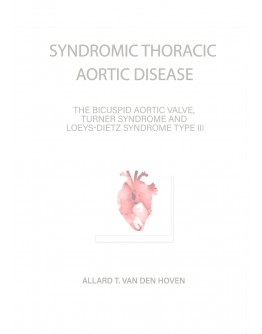 Syndromic Thoracic Aortic Disease