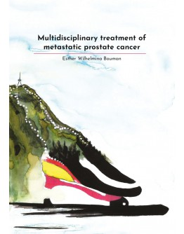 Multidisciplinary treatment of metastatic prostate cancer