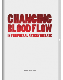 Changing Blood Flow in Peripheral Artery Disease