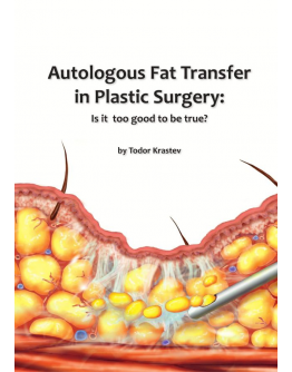 Autologous fat transfer in Plastic Surgery: Is it too good to be true?